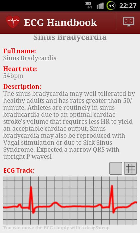 Heart ECG Handbook - Full - screenshot