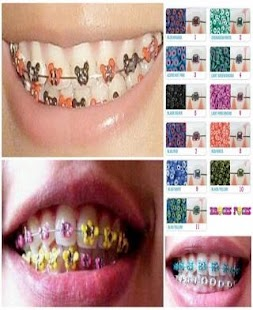 Make Fake Braces