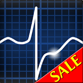 ECG Rhythms (The EKG Guide)