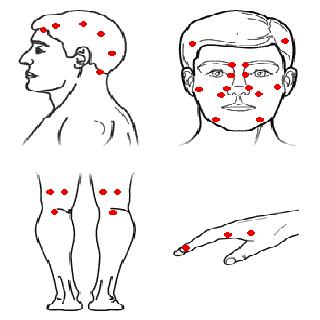 Acupressure Massage|玩醫療App免費|玩APPs
