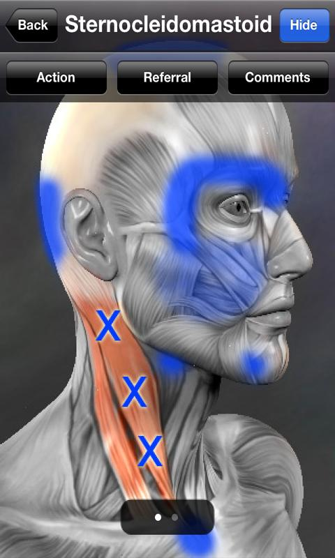 Download Muscle Trigger Point Anatomy Apk | Medical - Alternative ...