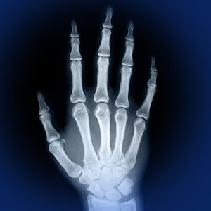 Skeletal Anatomy 3D 醫療 App LOGO-硬是要APP