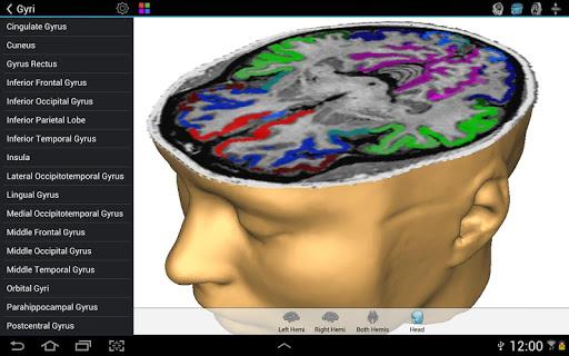 【免費教育App】Brain Tutor 3D-APP點子