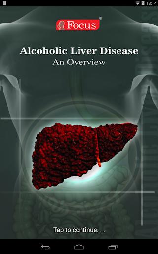 Alcoholic Liver Disease ALD