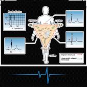 Tes EKG Analisis