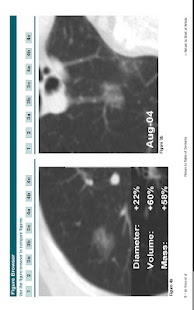 Radiology Select - screenshot thumbnail