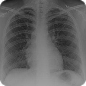 Radiology Tutor for Android
