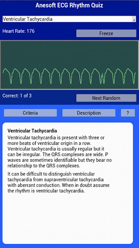 【免費醫療App】ECG Rhythms Quiz-APP點子
