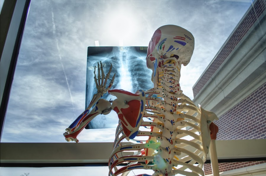X-Ray Self Portrait by Brandon Morgan - Artistic Objects Healthcare Objects ( window, bones, x-ray, skeleton, sunlight )