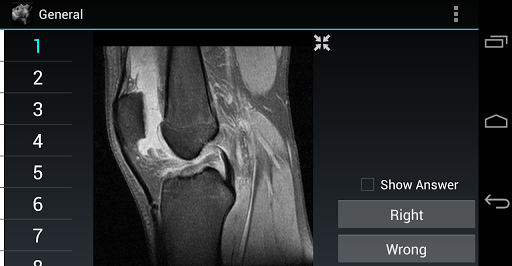 Radiology Flashcards: General