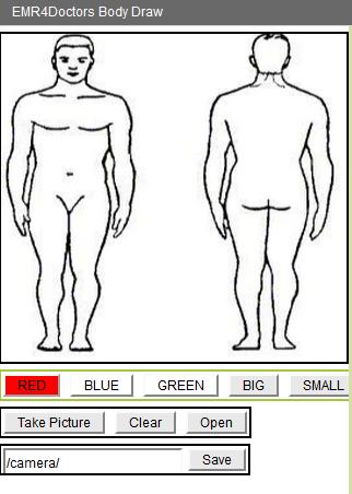 EMR4 Body Draw