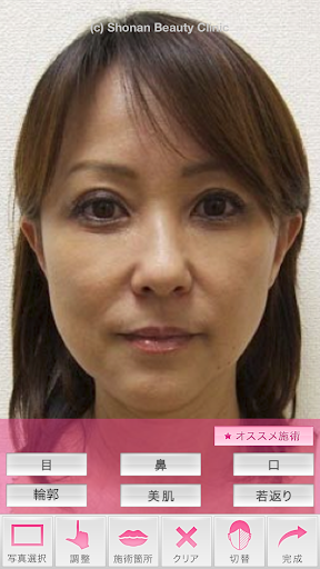 SBCミラクルシミュレーション By 湘南美容外科クリニック