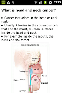 Gambling with oral cancer - Texas poker app girl