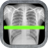 Ultimate X-ray Scanner