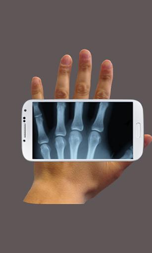 X-ray Cam Prank