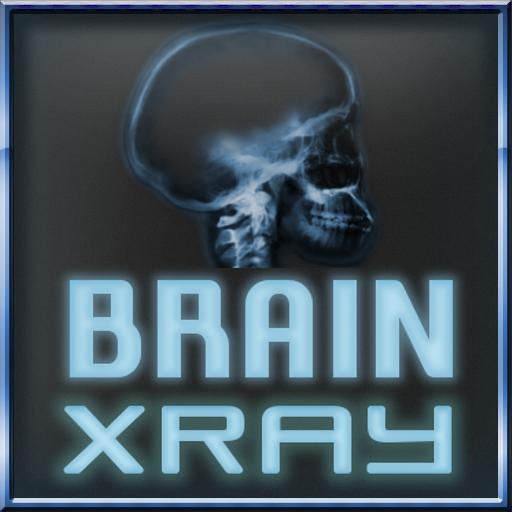娱乐の脳X線スキャナー LOGO-記事Game
