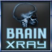 Brain Xray Scanner