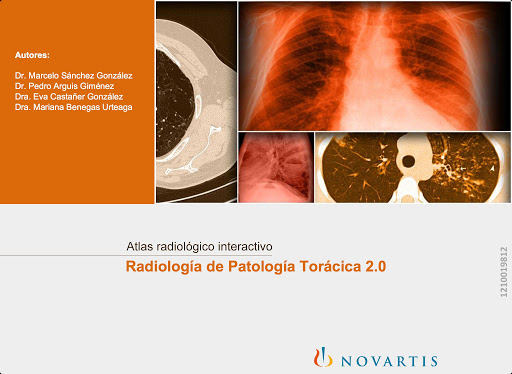 免費下載醫療APP|Radiología Patología Torácica app開箱文|APP開箱王