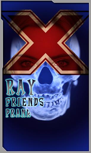 Xray Friends Prank