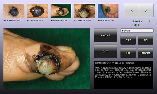 皮膚病データベース for Android Tablet