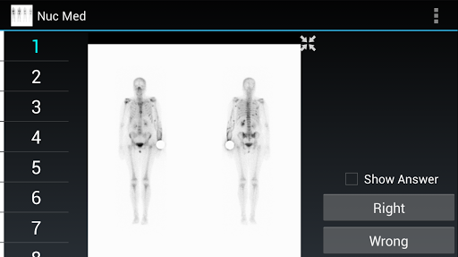 Radiology Flashcards: Nuc Med