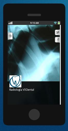 Radiología V3Dental