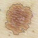 Skin Cancer Image Viewer logo