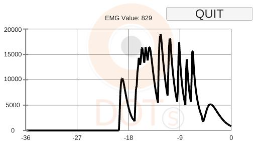 Dotri EMG Graph