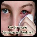 Pink Eye Causes Symptoms