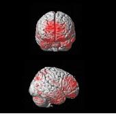 pre-Alzheimer Detect MRI