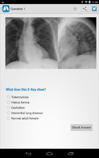 【免費醫療App】Chest X-Ray Training-APP點子