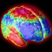 Brain Injury Glossary