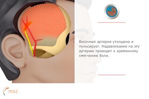 Screenshot of Мигрень-компас