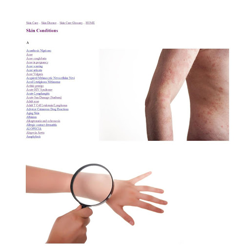 【免費醫療App】Skin Conditions and Diseases-APP點子